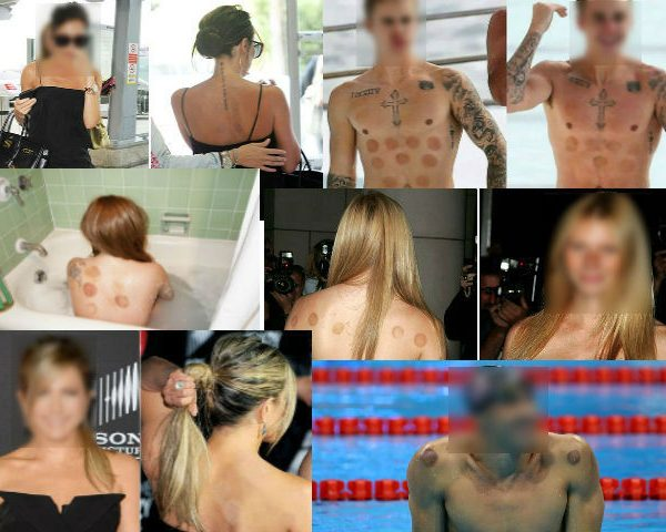 Celebrities Caught with Cupping Bruises