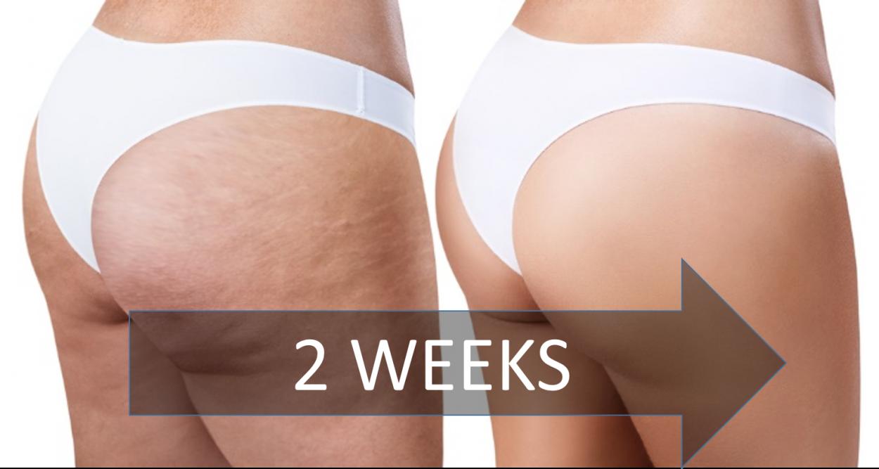 get-rid-cellulite-2-weeks