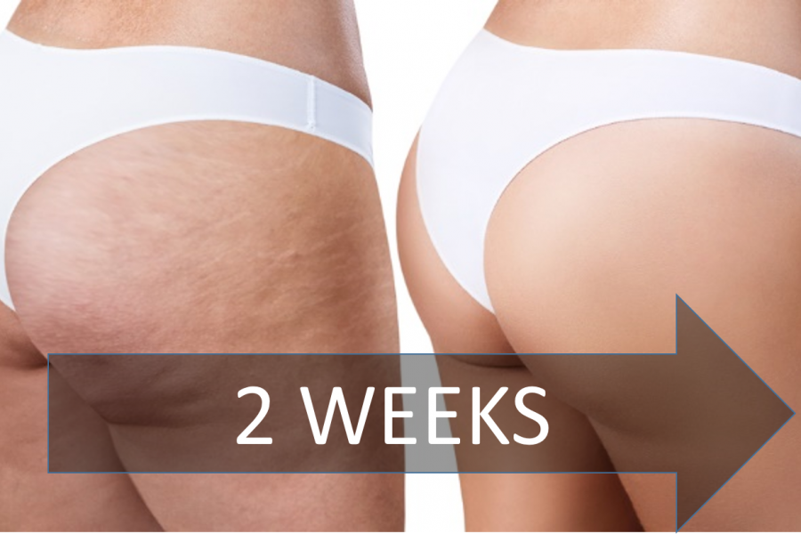 get-rid-cellulite-2-weeks