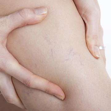 vericose veins from wearing shapewear