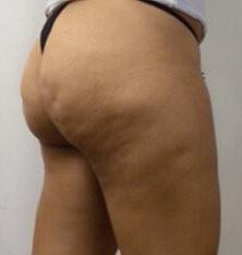 Edematous Cellulite Symptoms and Treatment