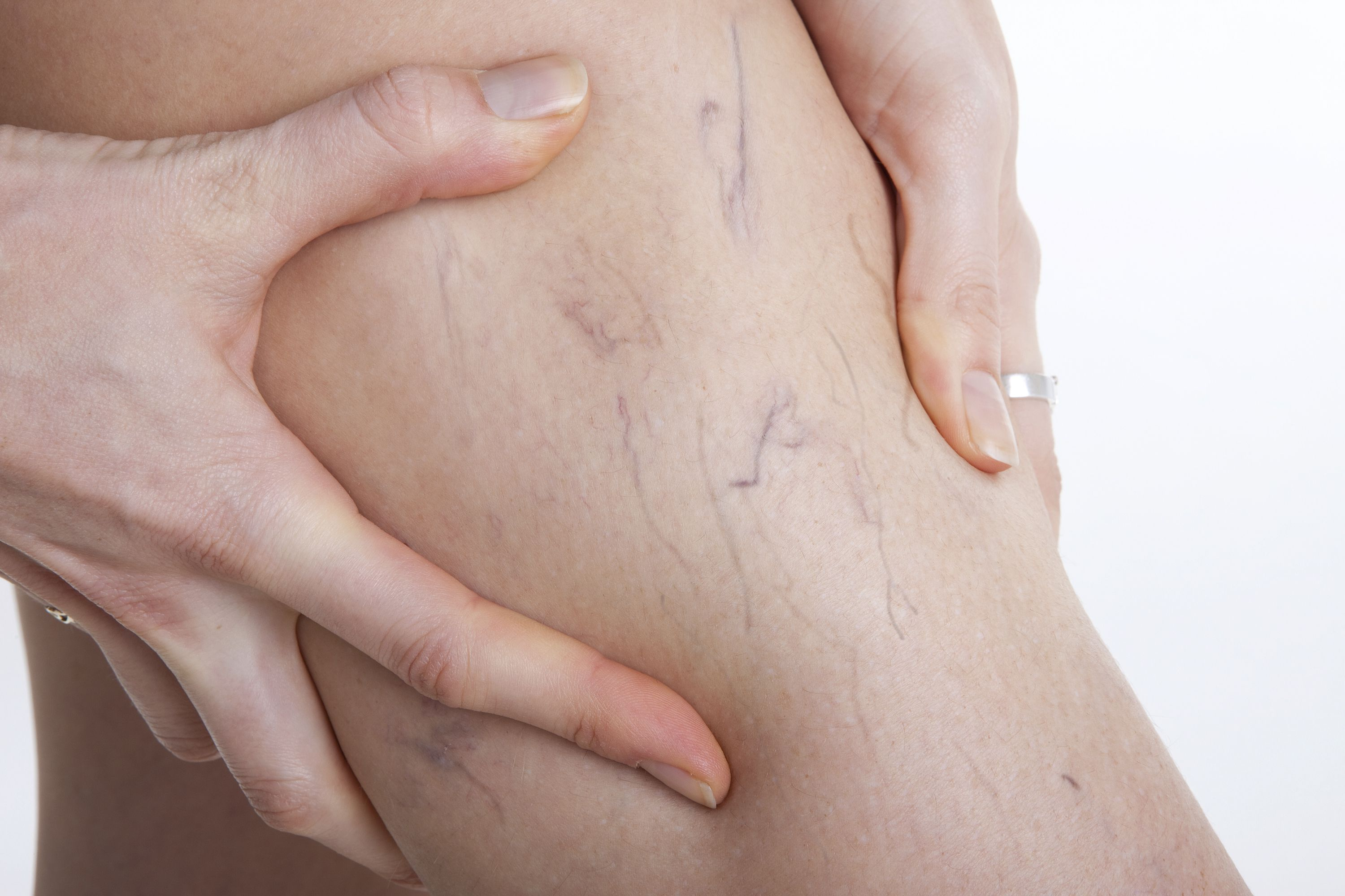 Soft Cellulite - Spider and Vericose Veins