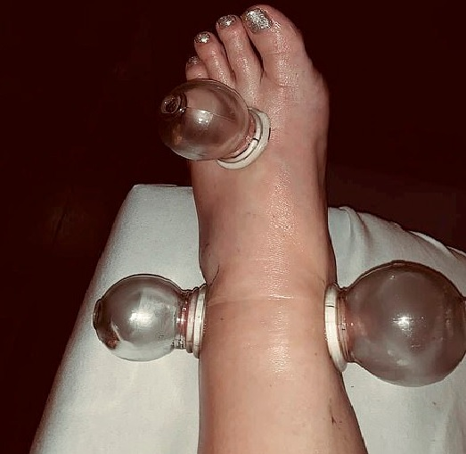 Jessica Simpson applying cupping techniques to her foot