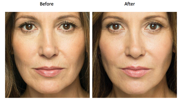 before-and-after-microneedling