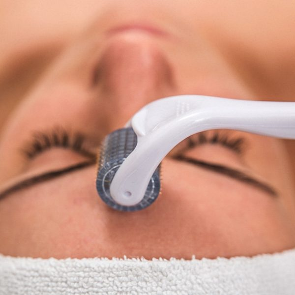 collagen induction therapy on face
