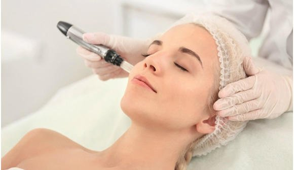 collagen induction therapy for men